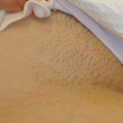 A before picture of a bikini line laser hair removal treatment.