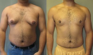 Gynecomastia can be corrected with plastic surgery.