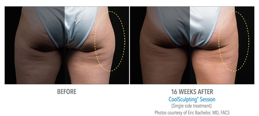 Before and After photos of a woman's thigh treatment with CoolSculpting.