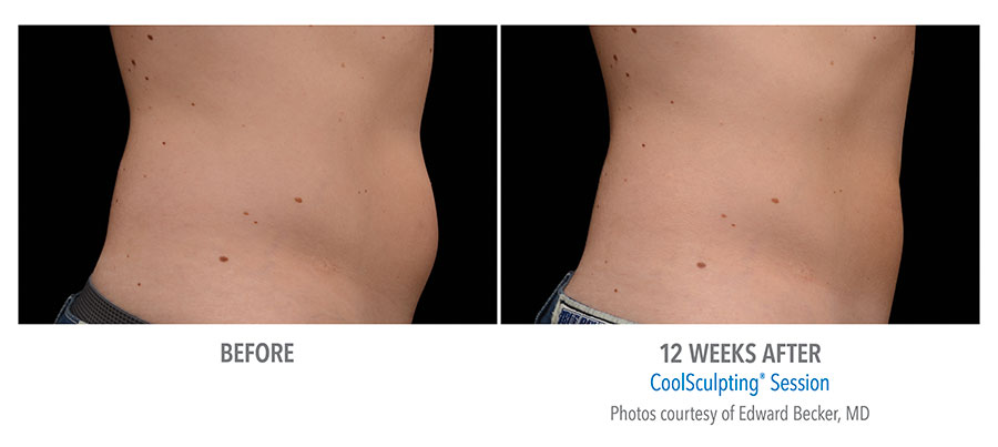 Before and After photos of CoolSculpting treatment on a man's stomach.