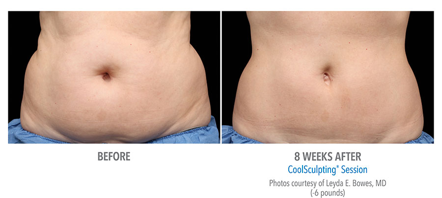Before and After photo of a CoolSculpting treatment on a woman's stomach.