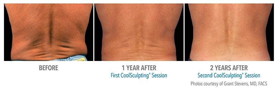 Before and after photos of CoolSculpting treatment on a man's back.