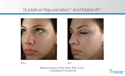 Before and After eMatrix treatment on a young woman.