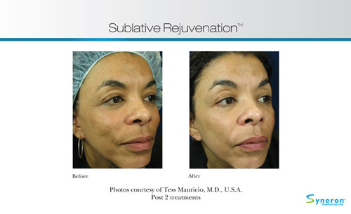 Before and After photos of an eMatrix treatment for wrinkles.