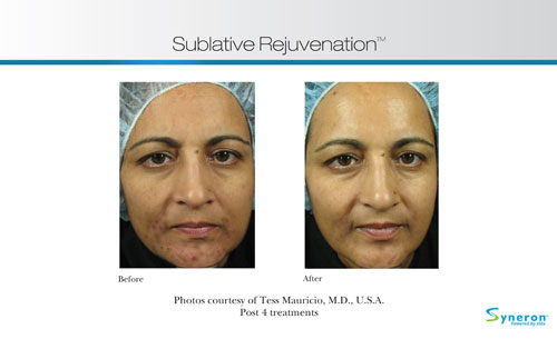 Before and After eMatrix treatment for acne discoloration.