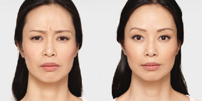Before and after photo of a woman's maximum frown after Botox.