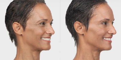 Before and After Photo of a woman's crow's feet after Botox.