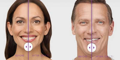 Crow's feet Before and After Botox Photo