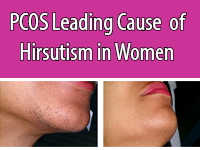 Hirsutism is most likely caused by PCOS in women.
