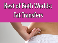 Houston Fat Transfer allows fat to be surgically removed from a donor site and moved to another area of the body.