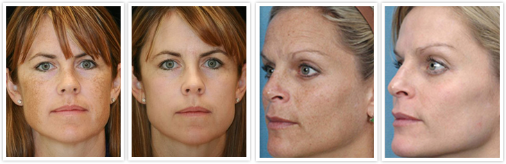 Uvb and puva treatments acne botox facial muscles