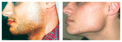 Before and after laser hair removal on a man's jaw and neck.
