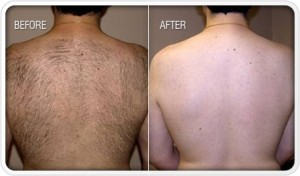 Before and after pictures of a man after having laser hair removal on his back. The left has a thick layer of dark hair, while the right is hairless.