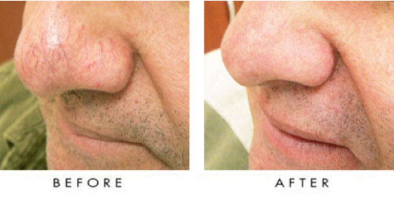 Spider Vein Removal Houston Before and After