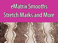 Stretch Marks can be treated with eMatrix, which encourages collagen growth.