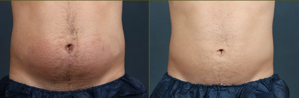 CoolSculpting Houston