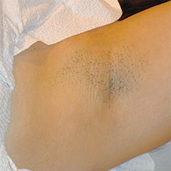 A woman's underarm, after laser hair treatment.