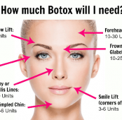 IS BOTOX THE SOLUTION FOR TMJ PAIN?