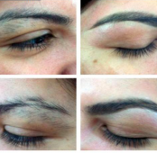 Eyebrow laser hair removal
