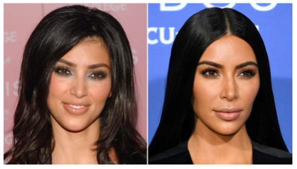 Get the Kardashian hairline with Laser Hair Removal!