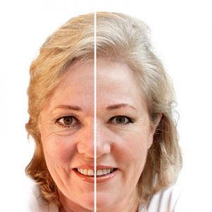 Fine-Lines-and-Wrinkles