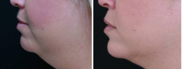 Coolsculpting for the chin and neck; Reduce Double Chin Fat