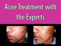 Aggressive acne treatment may include medical devices, such as this treatment with a Syneron device.