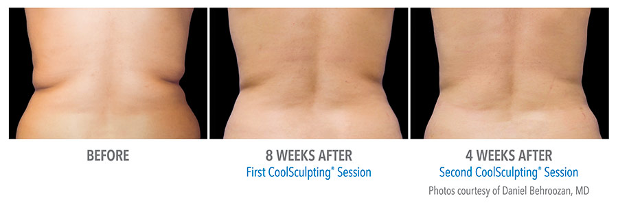 Sequence of Before and After photos of a CoolSculpting treatment on a woman's back.