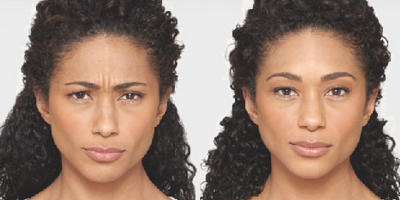 A woman's maximum frown before and after Botox.