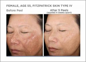 Chemical Peel 2