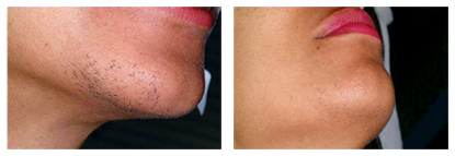 Laser Hair Removal Female Face