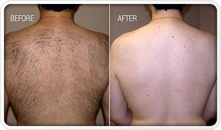 Before and after photo of laser hair removal on a male back.