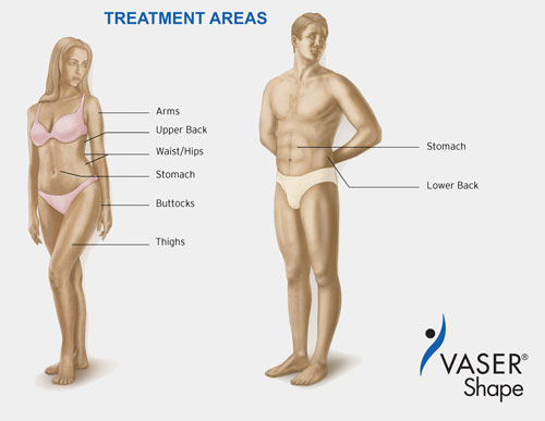 Male Female-Treatment-Areas