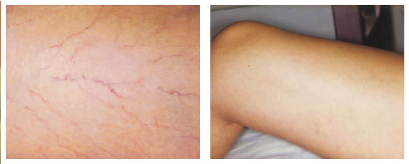 Spider Vein Removal Houston Thigh Before and After