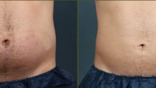 Coolsculpting Houston TX & Marietta GA