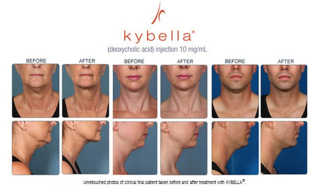 KYBELLA® Double Chin Treatment in Houston