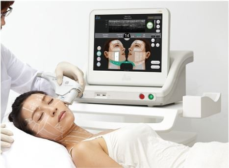 ultherapy5
