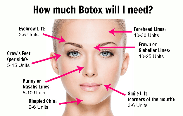 botox houston texas