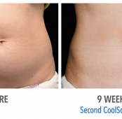 COOLSCULPTING : Fat Cell Reduction VS Weight Loss