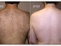 laser hair removal men houston tx