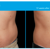 What is CoolSculpting? Cost, Treatment & Side effects