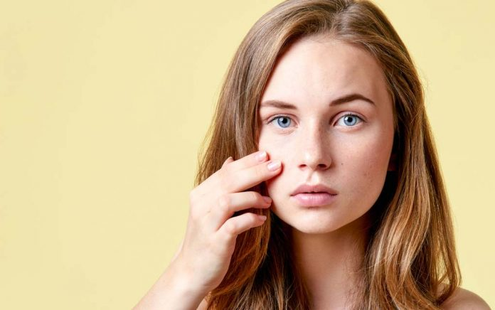 Not just for teens: Acne can arise at any age