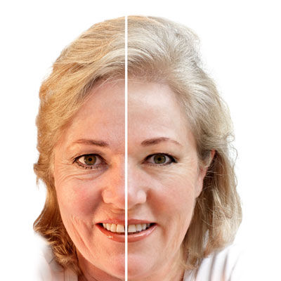 Wrinkles, Type & Removal Treatments