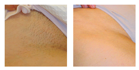 An after picture of a bikini line laser hair removal treatment.