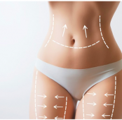 Is Body Contouring for me ?