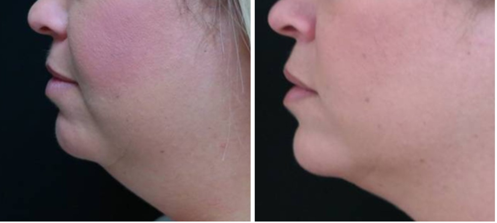 coolsculpting houston - chin and neck