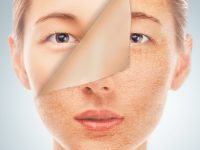 skin rejuvenation houston