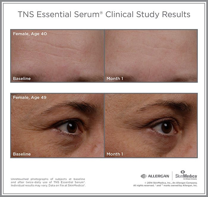 SkinMedica - TNS Essential Serum