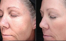 VI Peel Chemical Peel – Anti-Aging, Rejuvenating, Before & After and Results