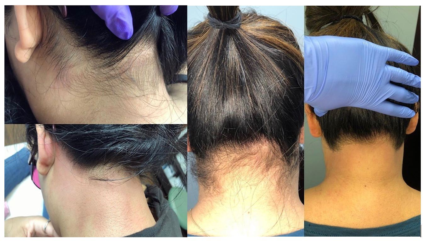 laser hair removal back hairline houston tx